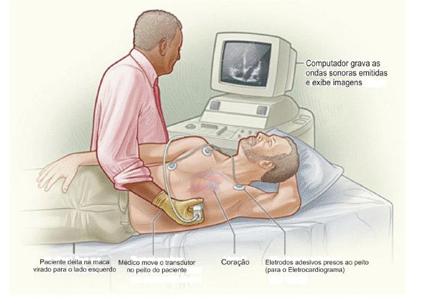 Como e feito o exame ecocardiograma